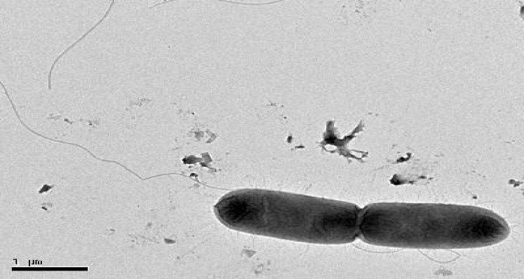 Salmonella Typhi Bactery Of Typhoid Fever Gram Stock Photo ...